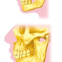 歯と顎関節